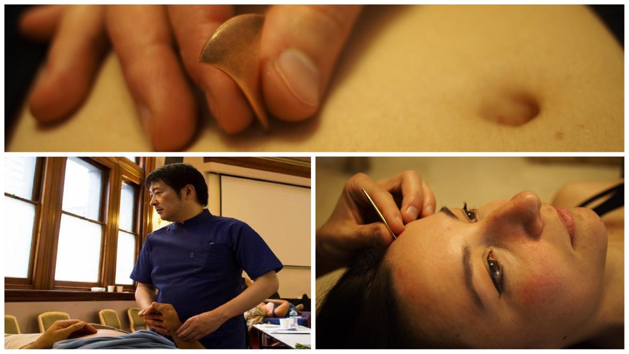 Tecniche manuali sullo stiramento tendineo e di ago a contatto
